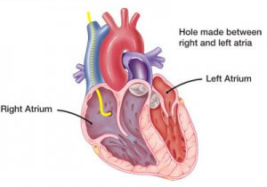 atrial-septostomy