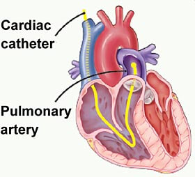 cardiac_catheterisation